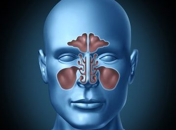 Is Your Sinusitis From a Fungus? No Wonder Antibiotics Don't Help