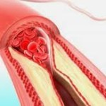 artery 3