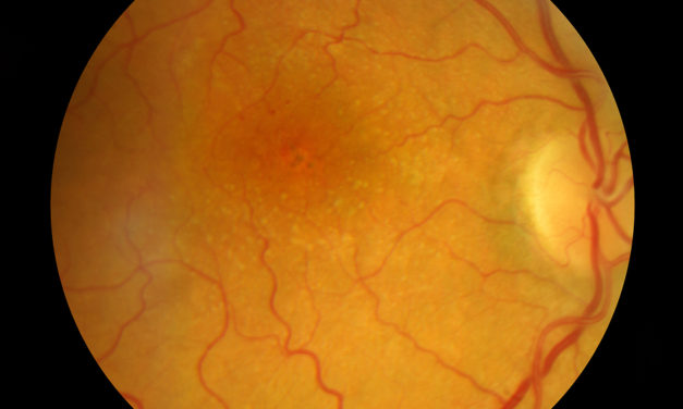 Macular Degeneration, Sunlight and Antioxidants