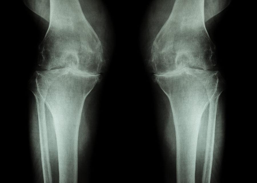 Could this be an Inexpensive way to Prevent Arthritis?