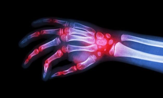 Rheumatoid Arthritis and Omega-3 Fatty Acids