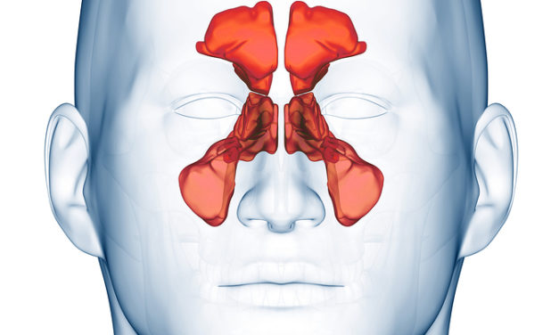 Catching a lot of Colds? Maybe it is Your Sinuses