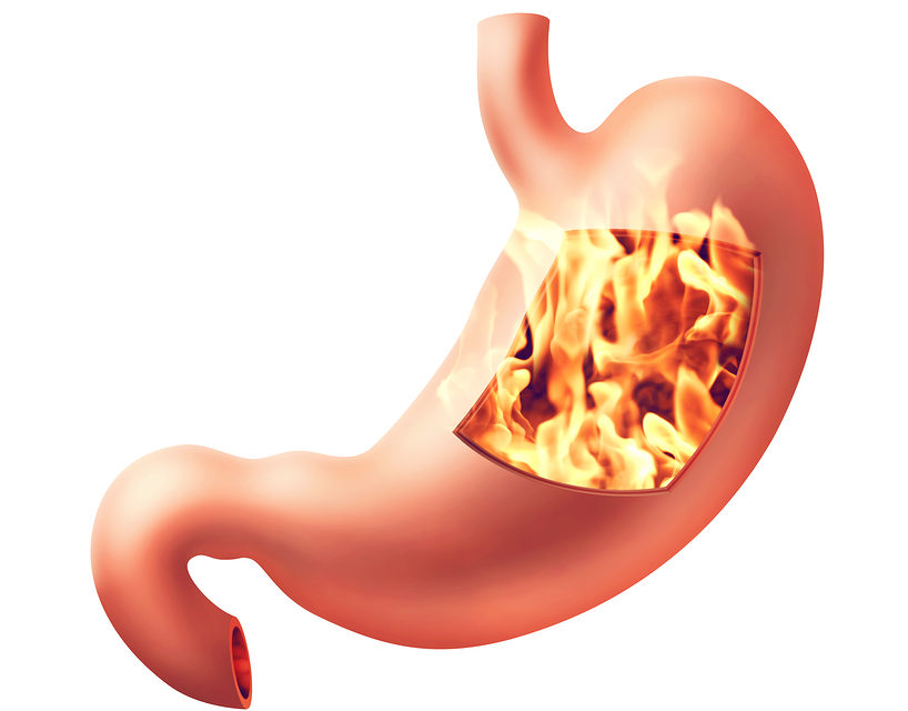 Anti Acid Medications may Aggravate Gastritis