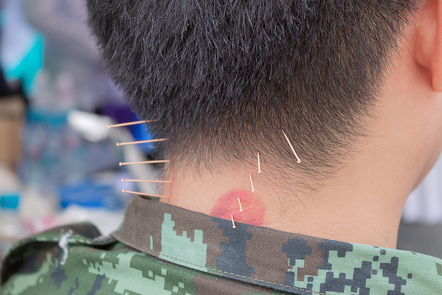 PTSD and Acupuncture