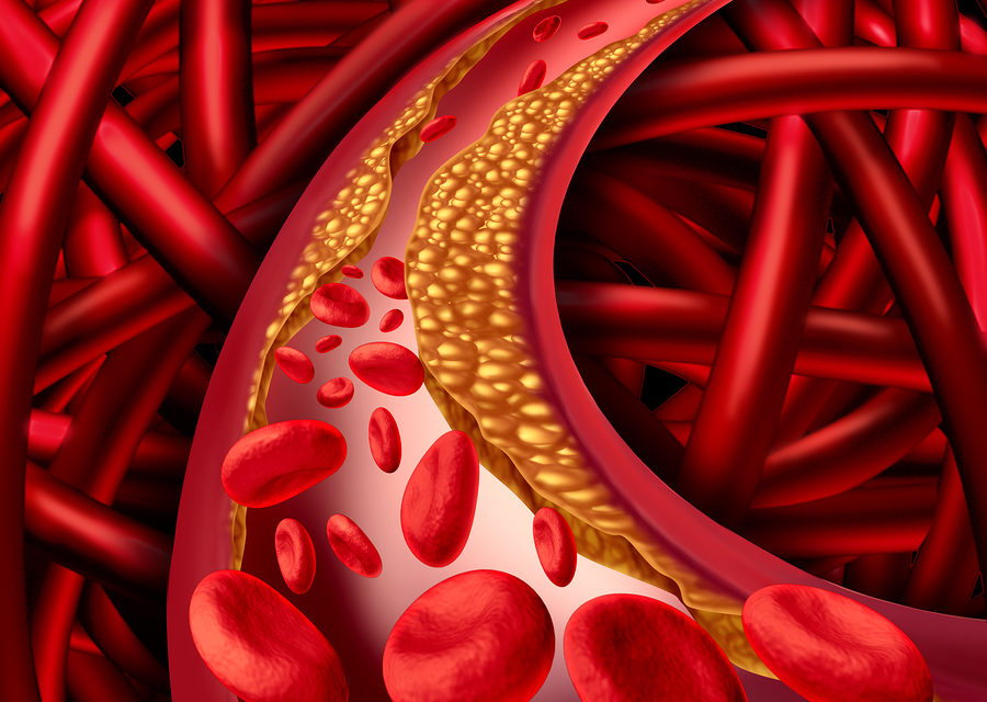 Arteriosclerosis and Vitamin K