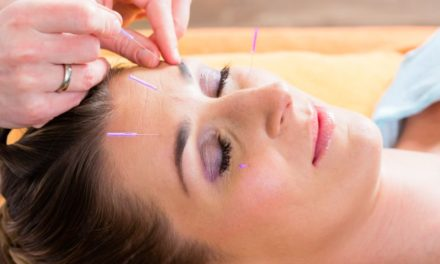 Chronic Headaches and Acupuncture