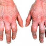 Rheumatoid Arthritis and Cod Liver Oil