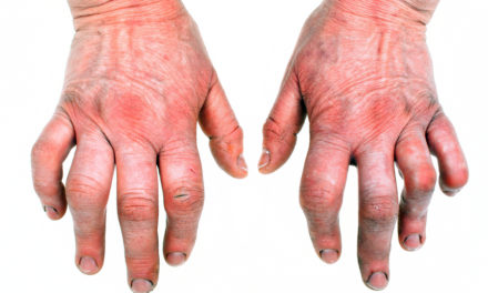 Rheumatoid Arthritis and Cod Liver Oil