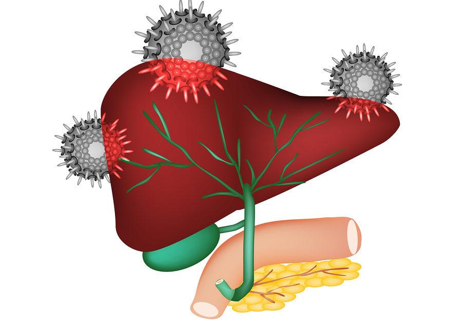 Nutrition and Hepatitis C