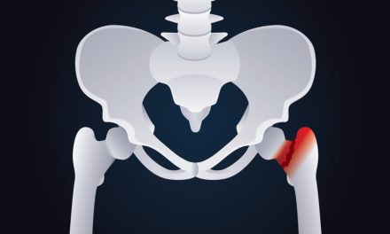 Are Antacids Linked to Hip Fracture?