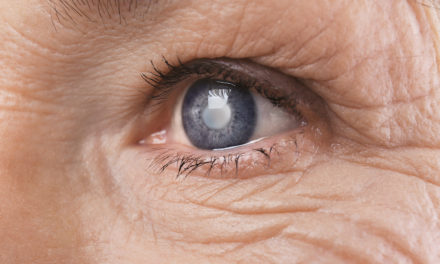 Nutrients Reduce the Risk of Cataracts
