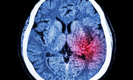 Nutrients Protect from Stroke