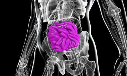 Oxidative Stress in Crohn's Patients