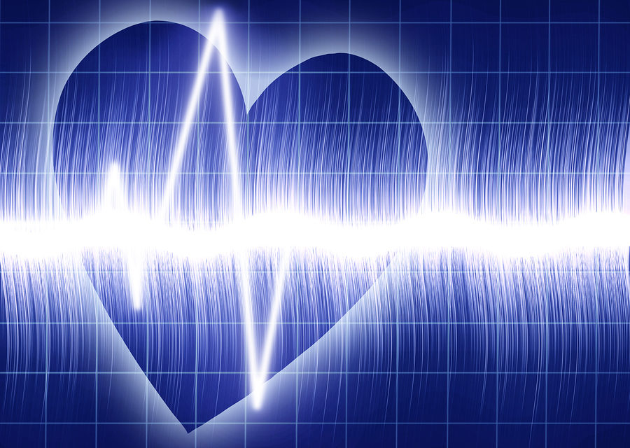 Low Vitamin D Levels Associated with Heart Attack
