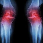 Niacinamide and Arthritis