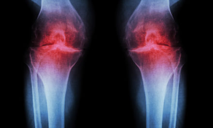 Niacinamide and Arthritis