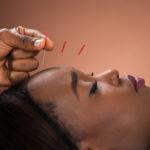 Acupuncture to Prevent Migraines