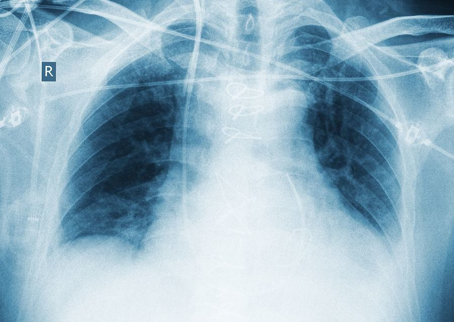 Zinc may Help Prevent Pneumonia