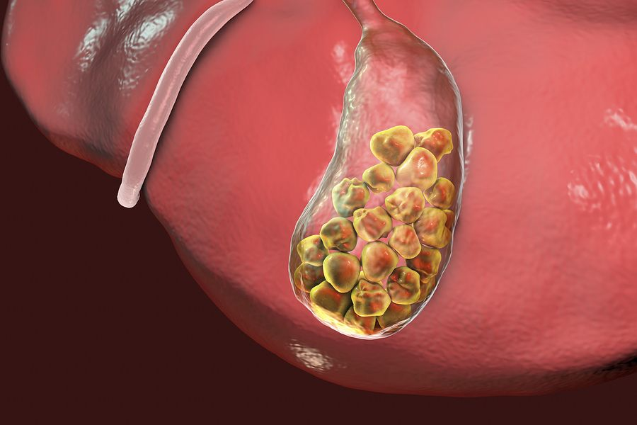 gallstones In medicine, gallstones (choleliths) are crystalline bodies formed within the body by accretion or concretion of normal or abnormal bile components gallstones can occur anywhere within the.