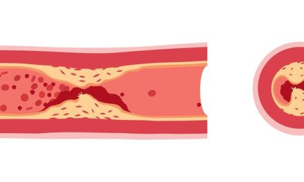 Vitamin K and Arterial Calcification