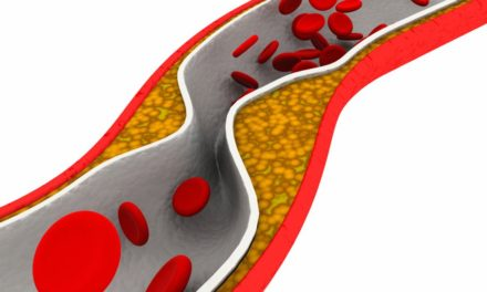 Trans Fatty Acids and Cardiovascular Disease