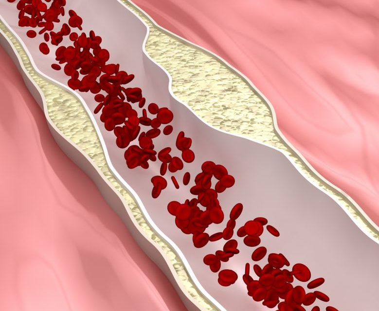 Vitamin D and Coronary Artery Disease