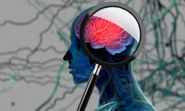 Maybe it is not Alzheimer's–Here is a Vitamin Deficiency That Mimics the Symptoms