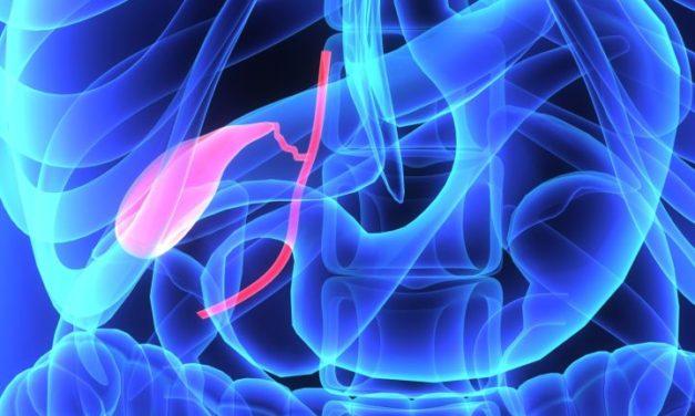 Vitamin C and Gallbladder Disease